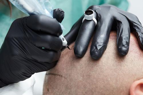 Serviço de Micropigmentação Capilar em Brasília – DF